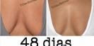 tatouage_vergetures_tattoos